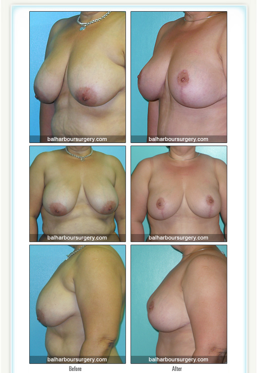 Mastopexy- Before and After