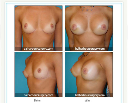 Breast Augmentation- From an A to a C
