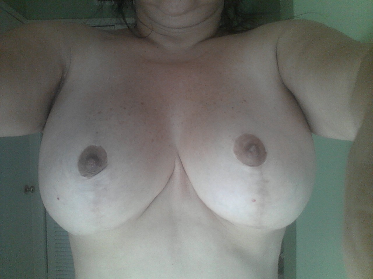 Breast Lift and Augmentation at 7 months