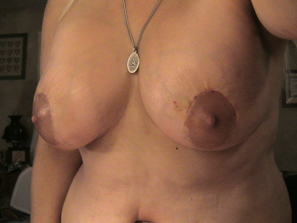 10 days post op - breasts