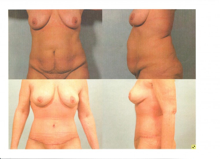 Tummy Tuck Before/6 Weeks After