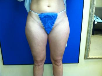 BEFORE Lipo - Front Shot
