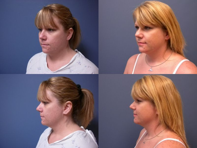 Neck Liposuction 2011