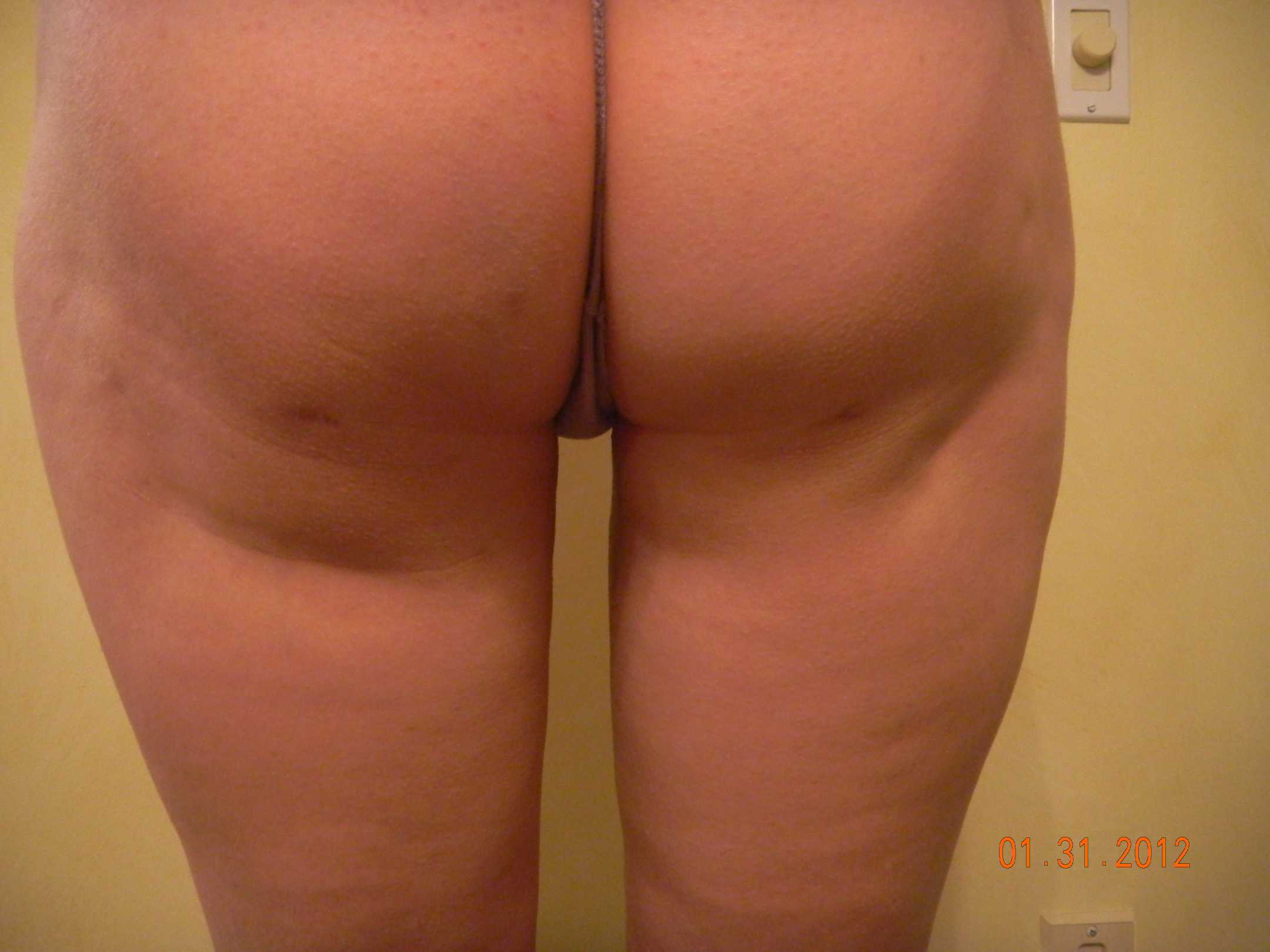 Crevices from aggressive lipo