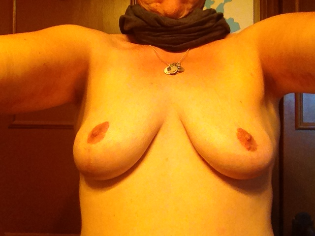 Breast Lift 4yr Post Op