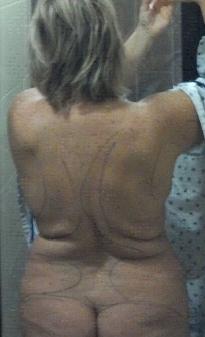 Back- BEFORE - day of surgery