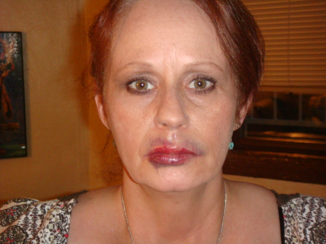 my new lips and a little botox to