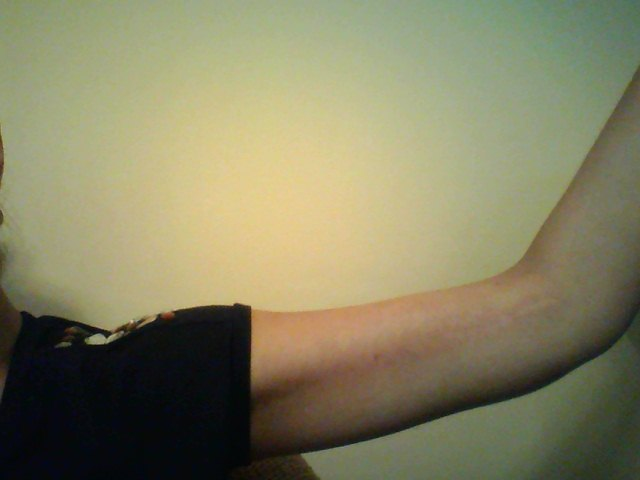 Right Arm Bracioplasty scar