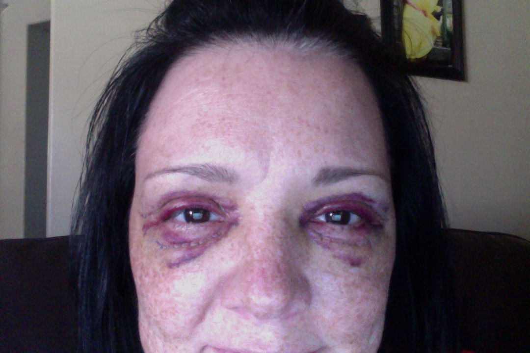 Post Op Vaginoplasty http://www.makemeheal.com/pictures/blepharoplasty/post-op-day-3-p160608