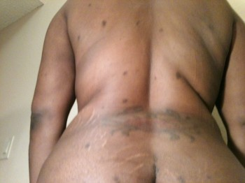 Back Fat After Lipo