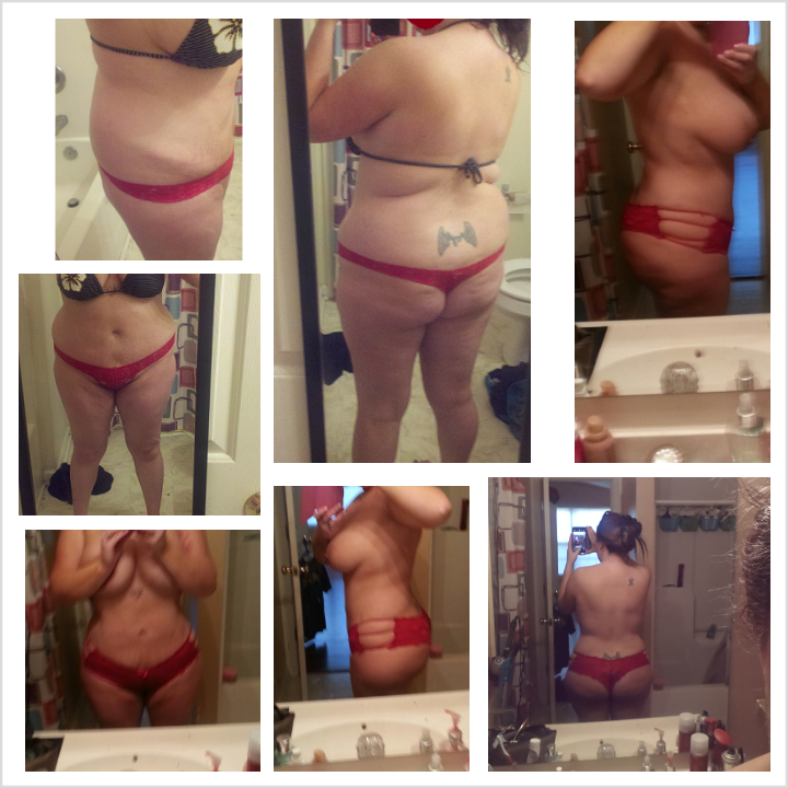 Before and 9 months post op pics
