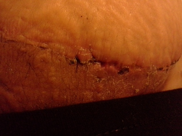 skin growing over stitches