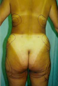 Before Liposuction
