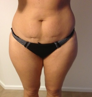 Before Body Jet liposuction