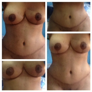 Tummy tuck at 6 weeks