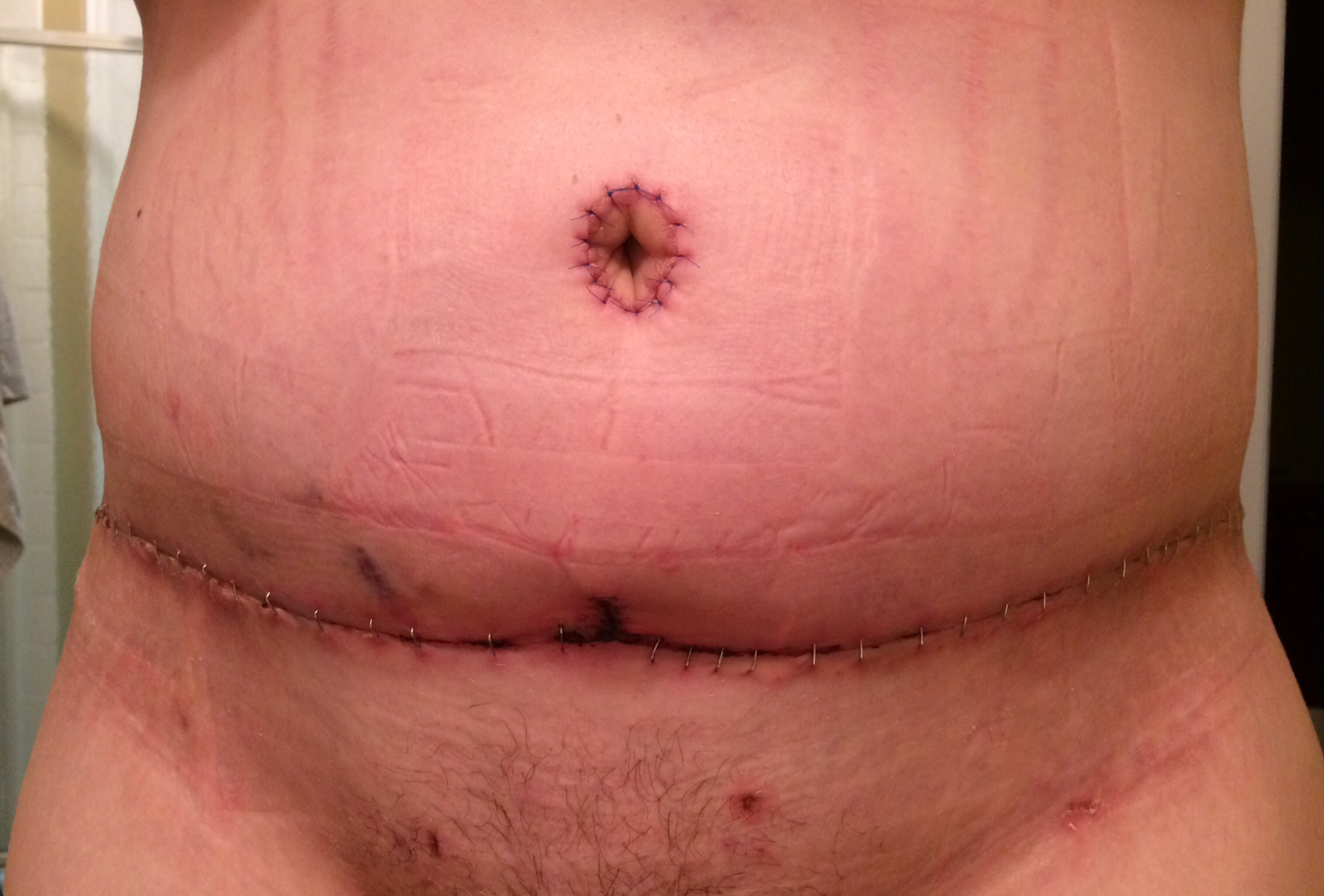 Day 10 incision