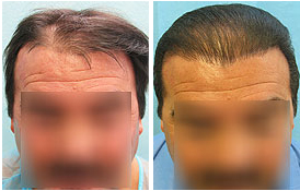 Best Hair Transplantation in India