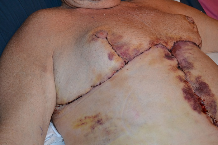 post op chest