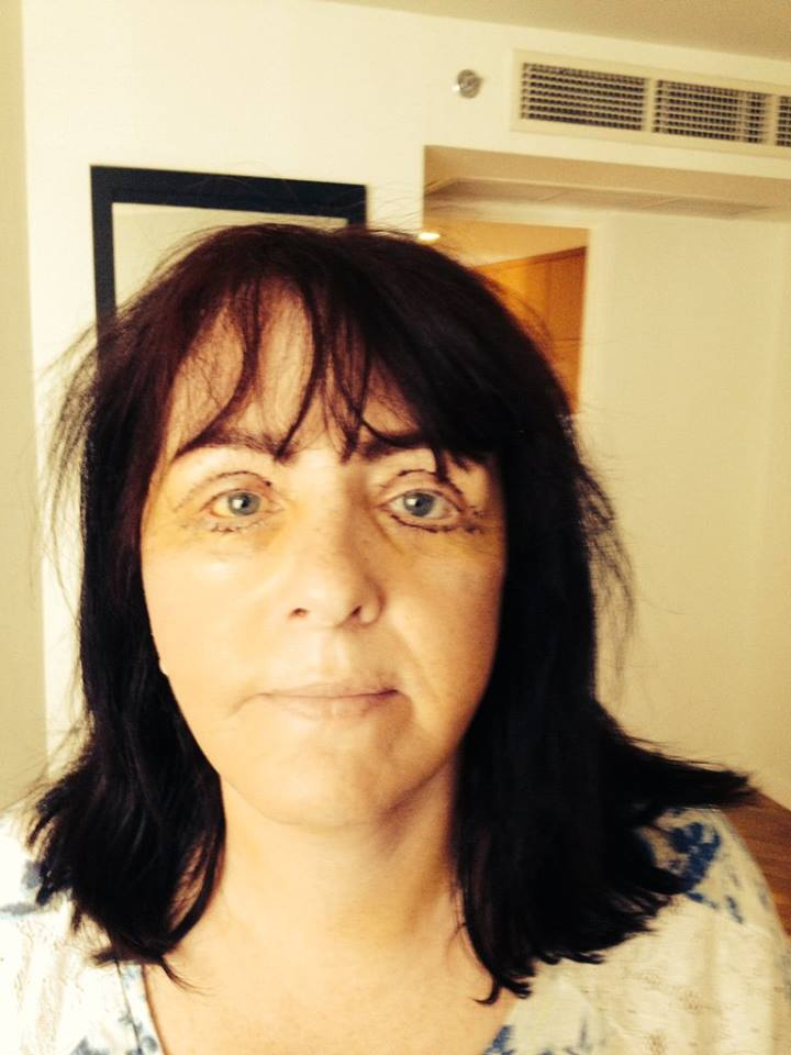 Full facelift eyes one week post surgery