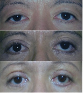 Different phases of eyes, before & after pics