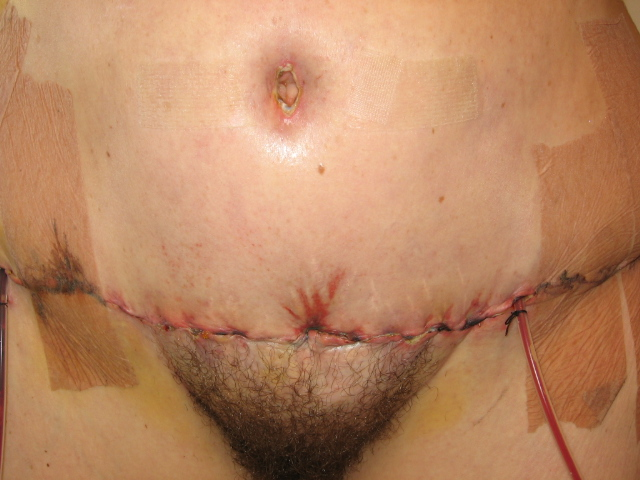 BB and Incision Front