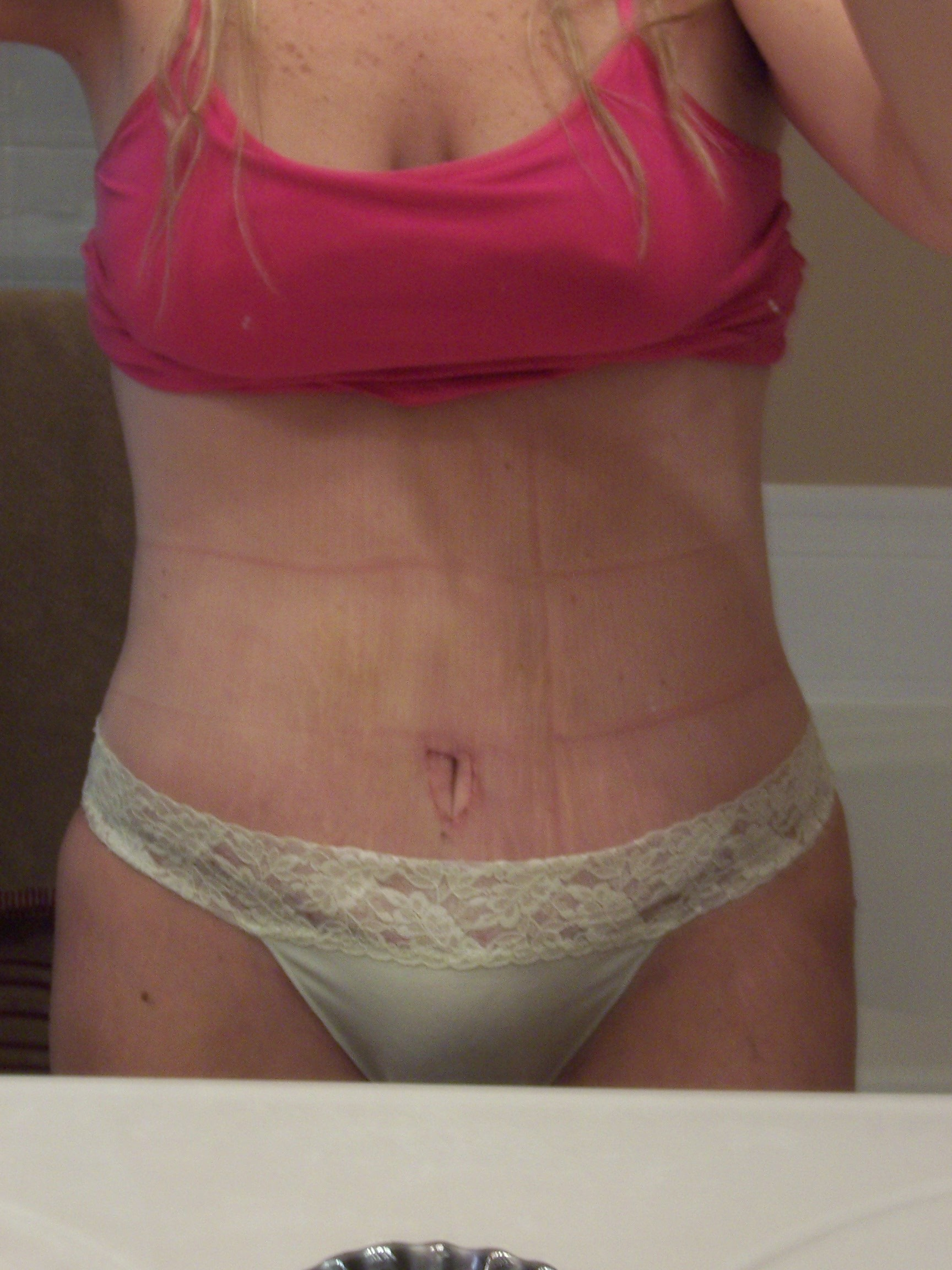 Post op day 9 panties