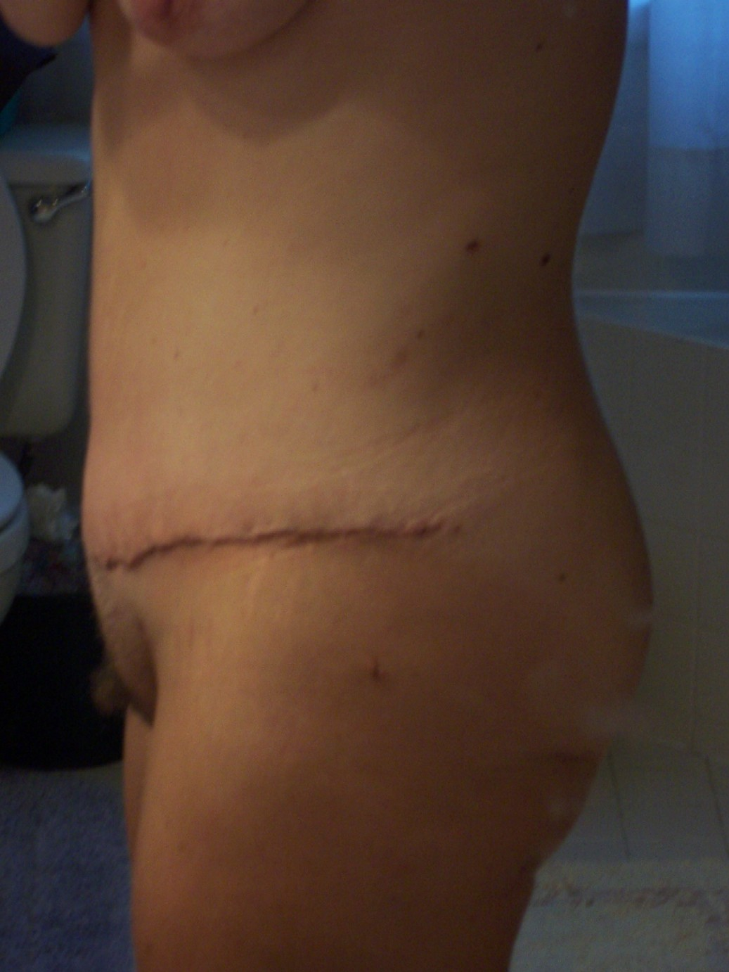 Side close up scar 3 1-2 weeks