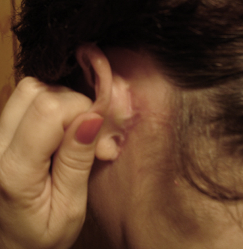 Day 49 Behind Ear Scars