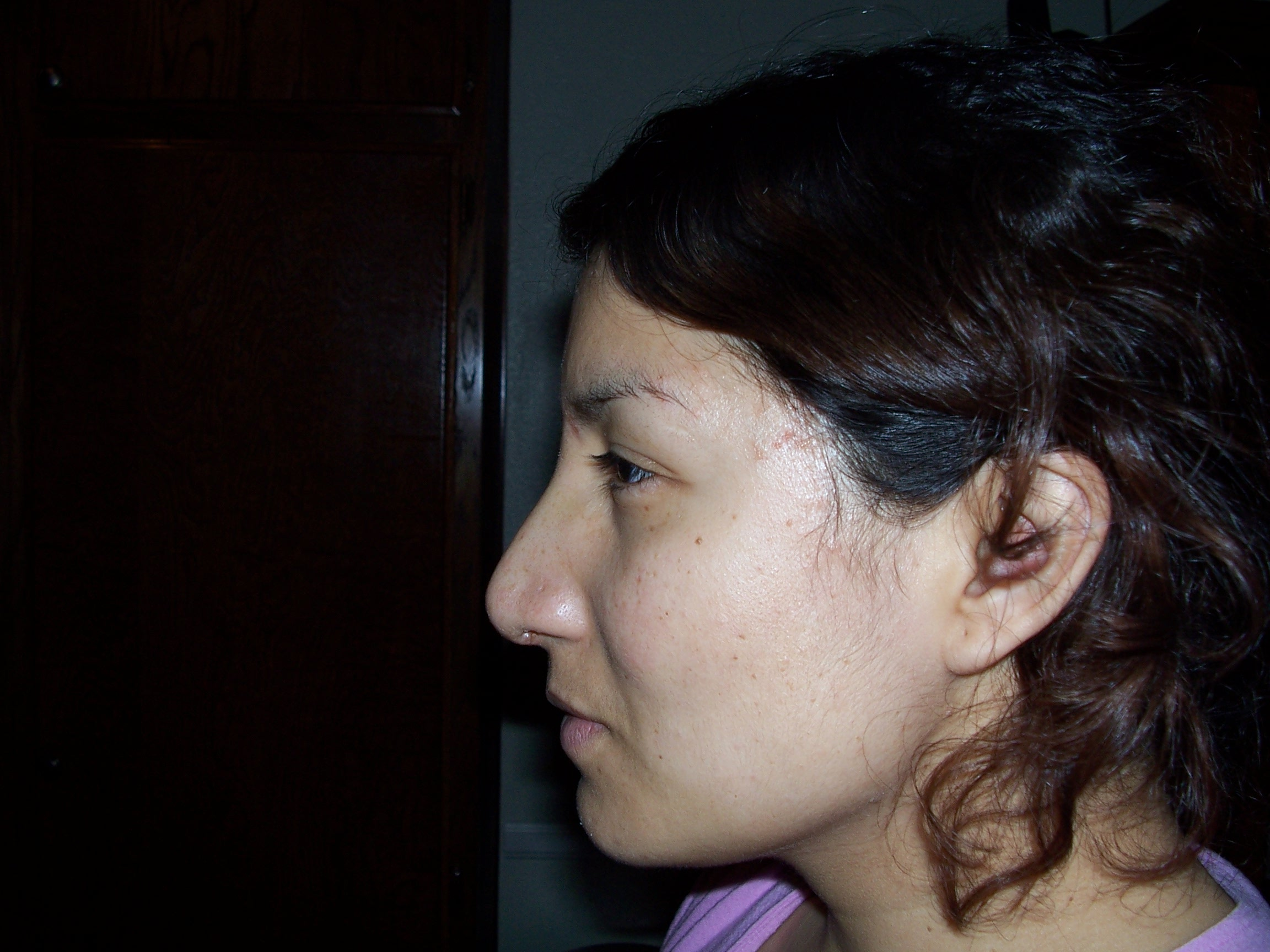 Profile- after