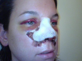 Cast Nose Surgery Nose Job Rhinoplasty Pictures Photos