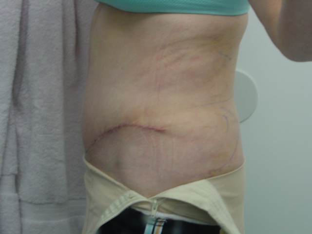 14 days post op FTT, MR, lipo