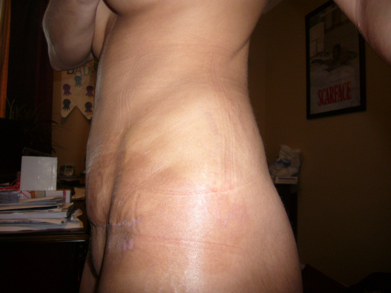3wks post-op left side