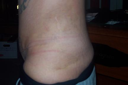 Left lipo view 12 days post op