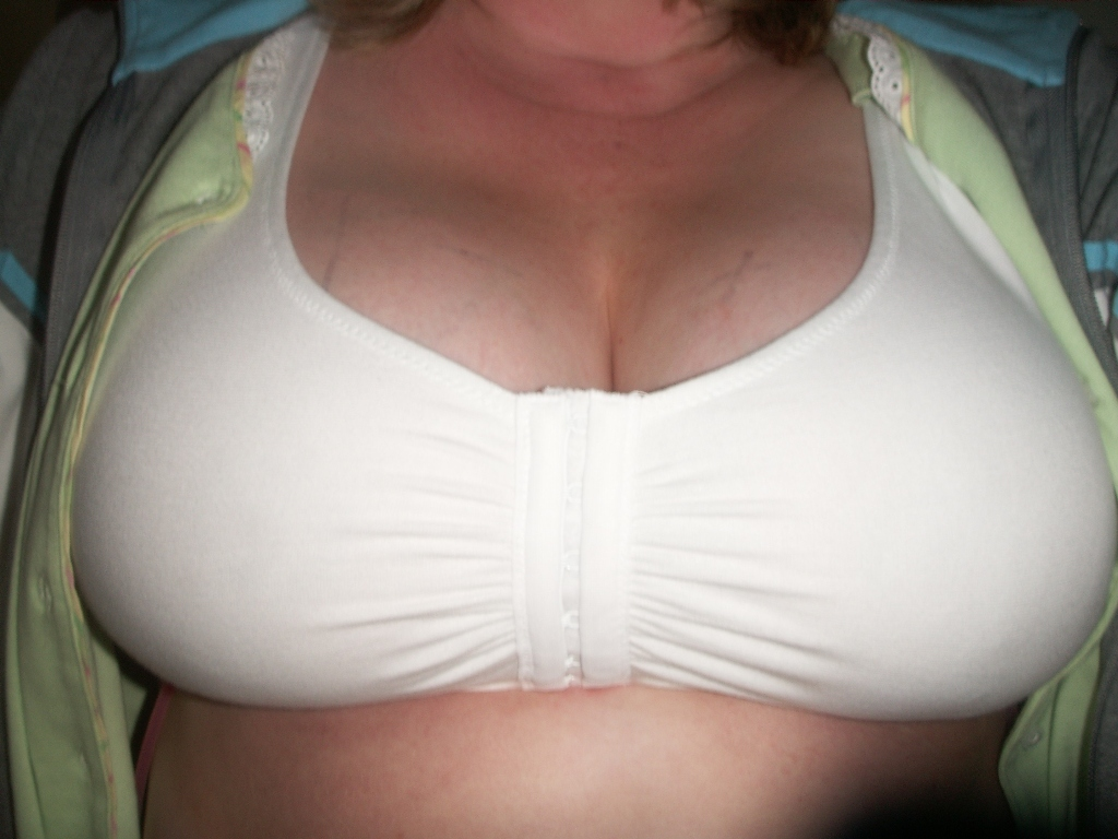 Post-OP, in new sportsbra w/hooks