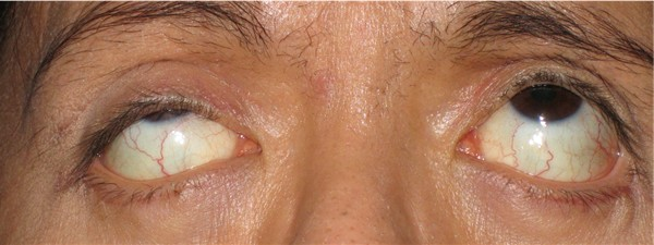 Indi : eyes looking up (ptosis repair right eye) : 13 Jan 05 (a month post surgery)