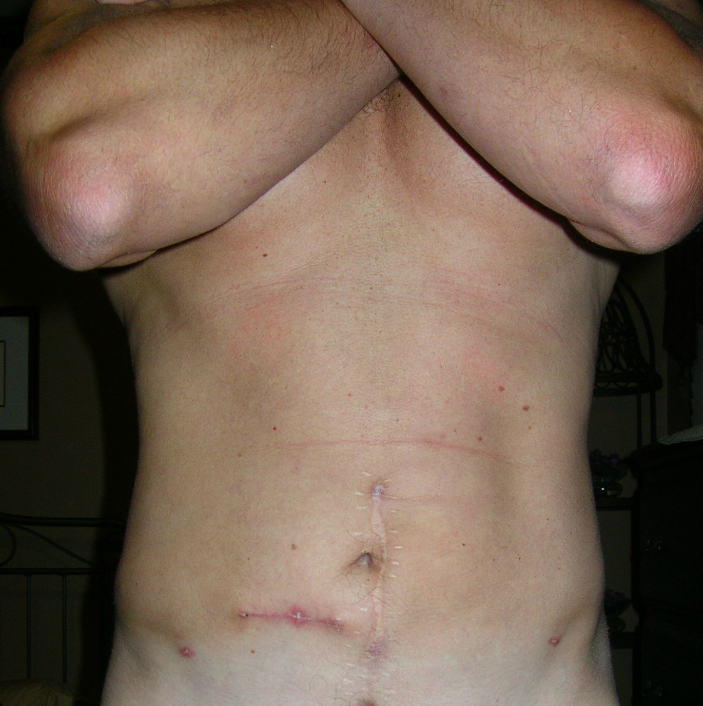 25 days post op