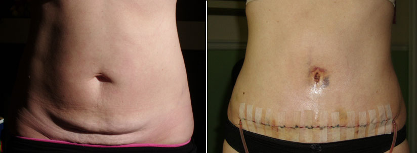 Compare BEFORE and 6 days Post-Op