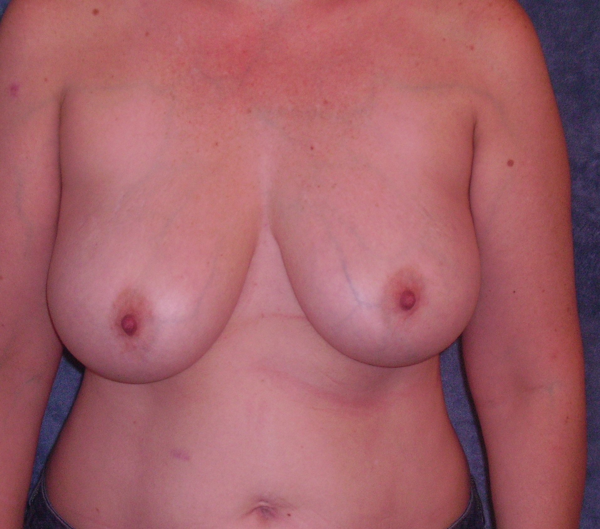 My Breast Lift - 47 Y/o, Breasts Grew from 34B to 40D
