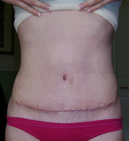 17 days Post Op with scar