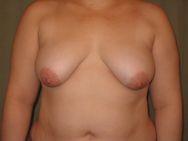 Breast Before