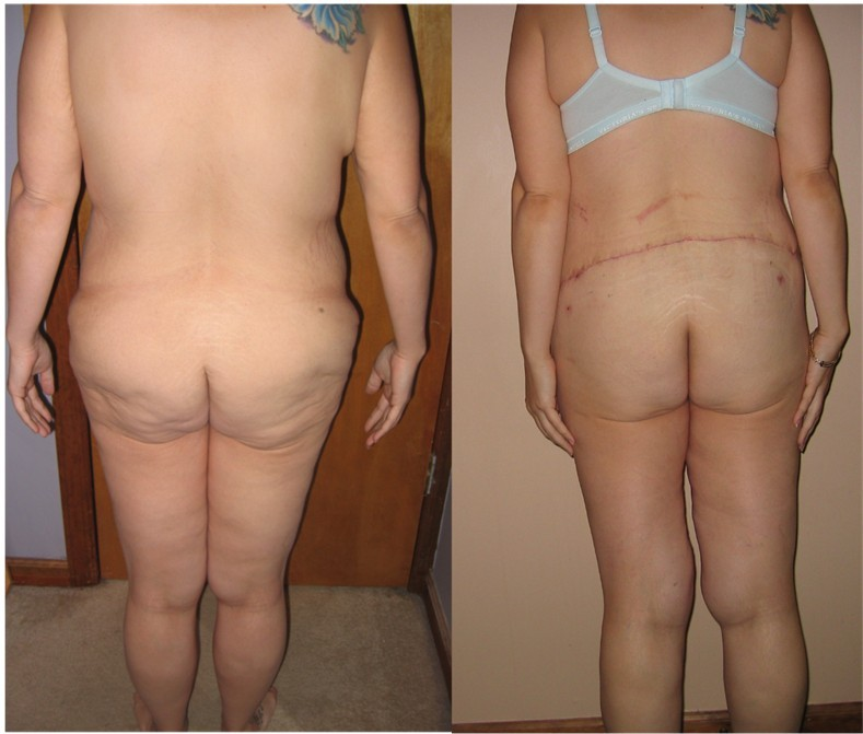 before and 15 days post op backside view