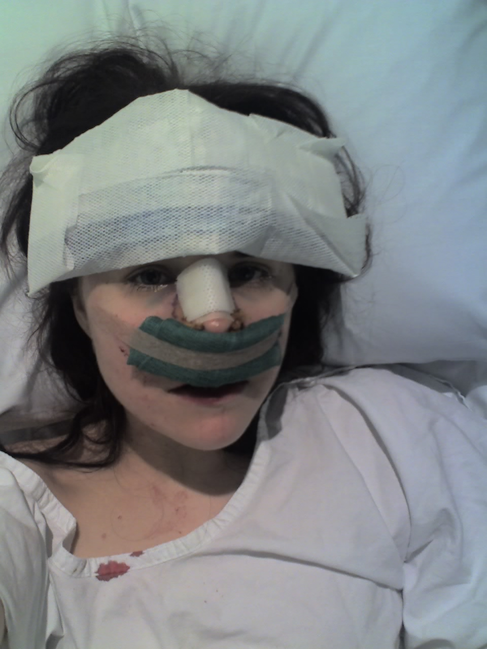 Right after surgery - in the recovery room!