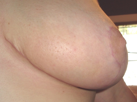 Left cleavage scar