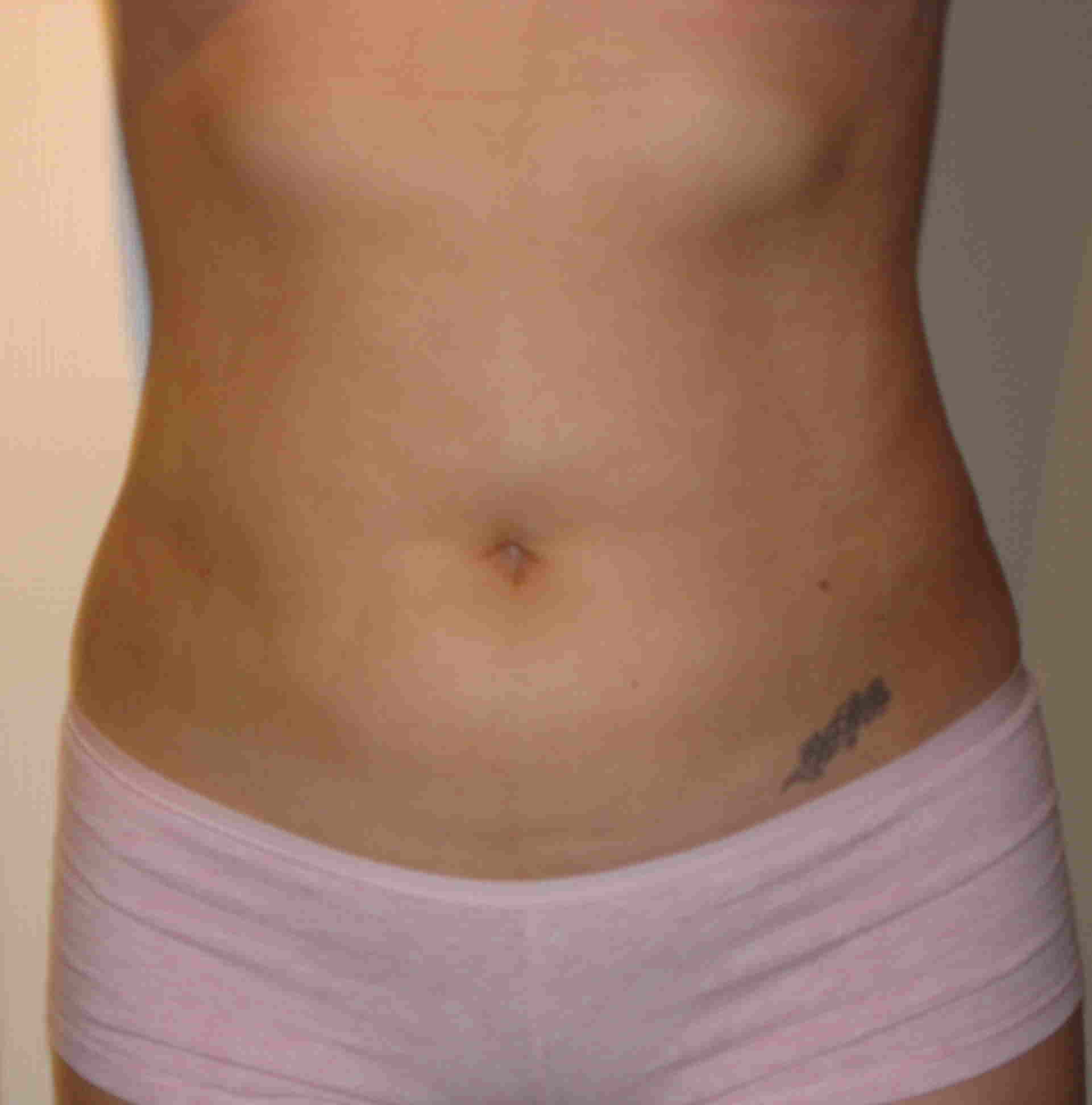 Post Op 2 week front