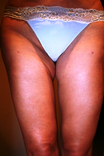 Thigh 2 Photo after surgeries