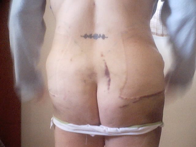 3 days post op
