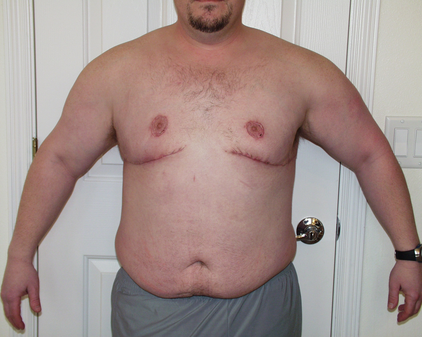 22 days post op