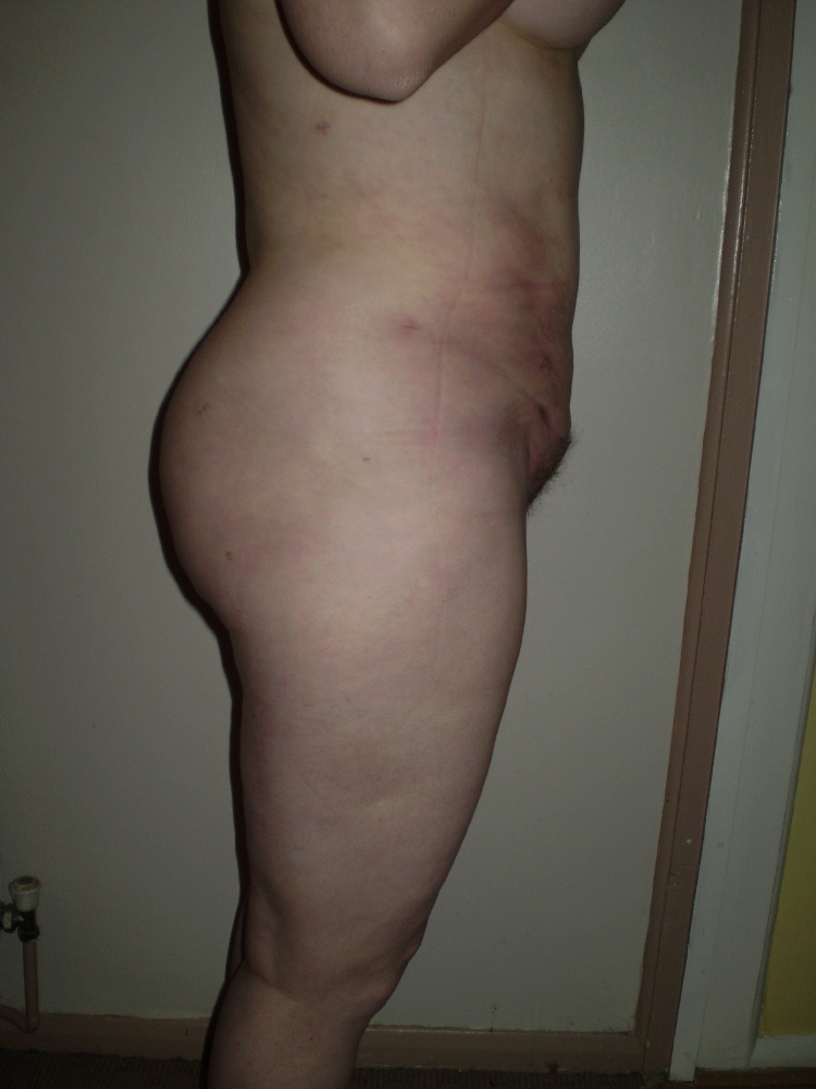 post op 1 month right view