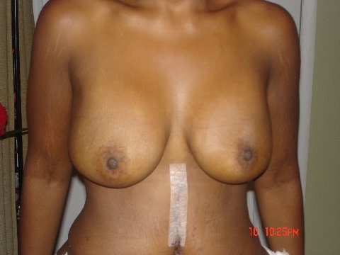 5 days post op- breasts