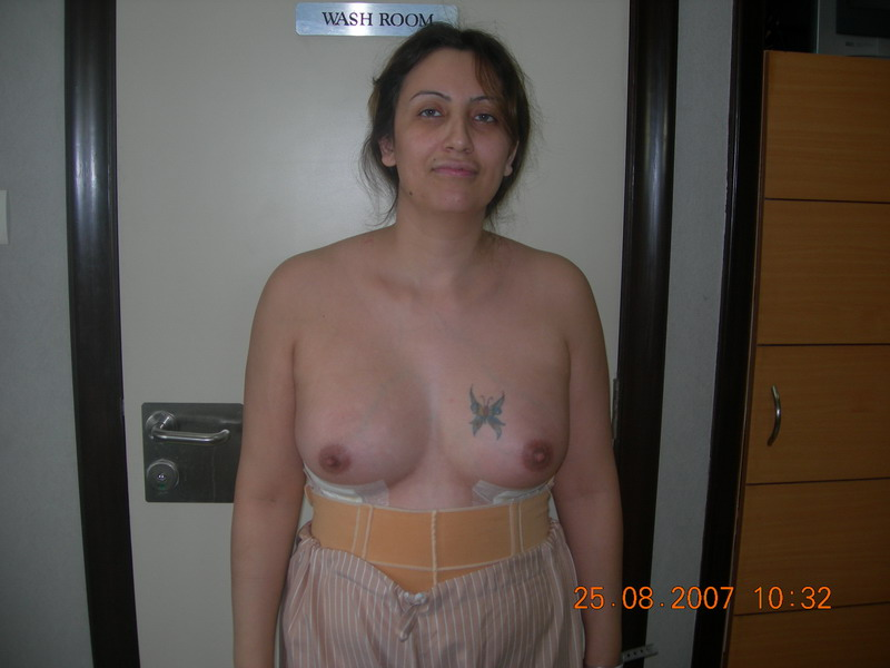Post-Op Breasts